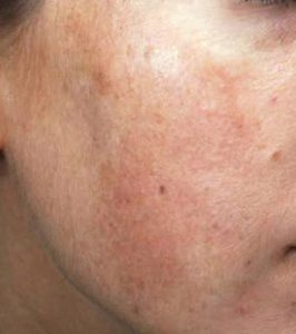 Melasma en carrillo